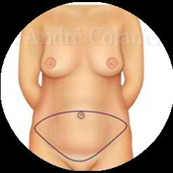 Cirurgia do Abdômen (Abdominoplastia ou Dermolipectomia)