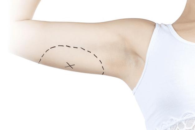 Dermolipectomía de brazos – Cirugía plástica del adiós