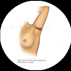 Cirurgia do Braço
