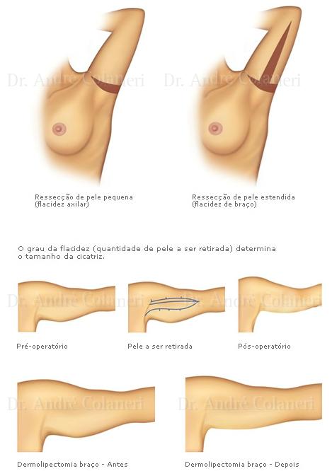 Ilustrações Dermolipectomia dos Braços