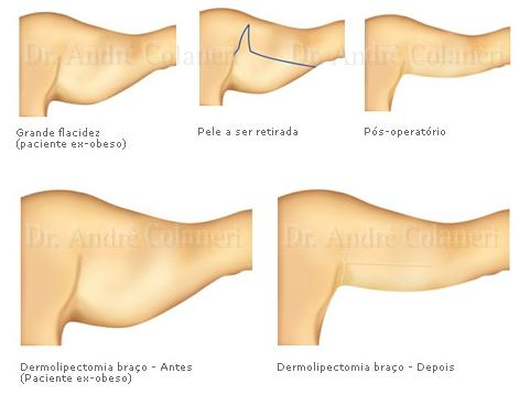 ilustracoes dermolipectomia dos bracos img 02