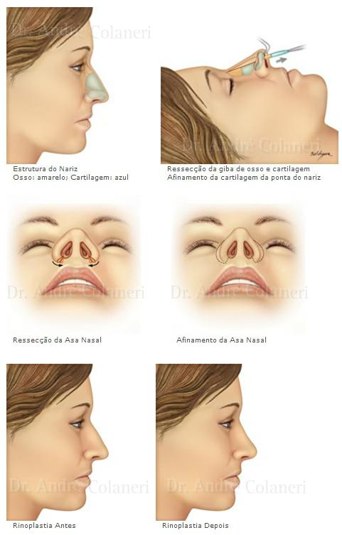 Ilustrações Rinoplastia (Cirurgia do Nariz)