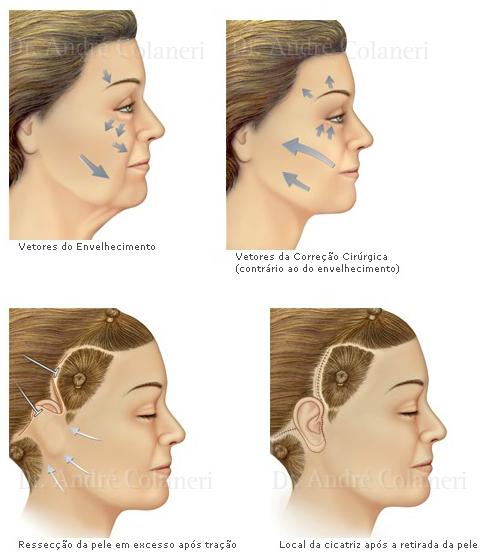Ilustrações Ritidoplastia ou Lifting Facial (cirurgia da face)