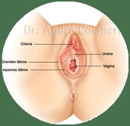 Ninfoplastia - Ilustração dos grande lábios vaginais