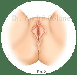 ninfoplastia -ilustração vagina