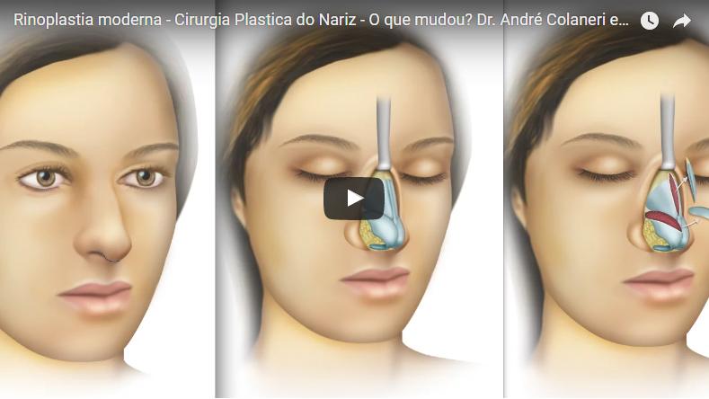 Fotos cirurgia plastica de nariz