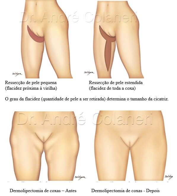 ilustracoes dermolipectomia da coxa img 02
