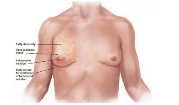 O que causa a Ginecomastia?