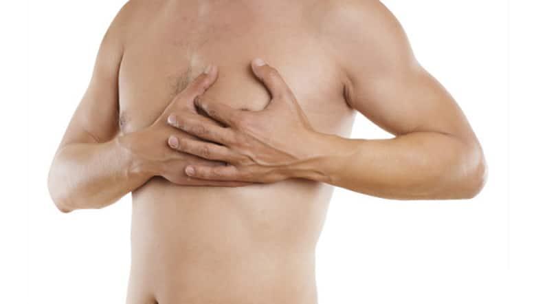 ¿Cuáles son las causas de la ginecomastia?