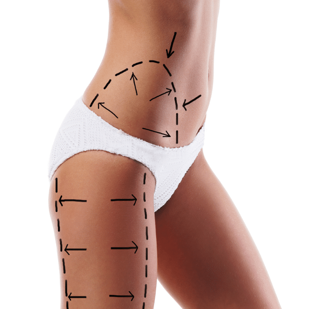 Cirurgias plásticas podem diminuir o flanco e culote