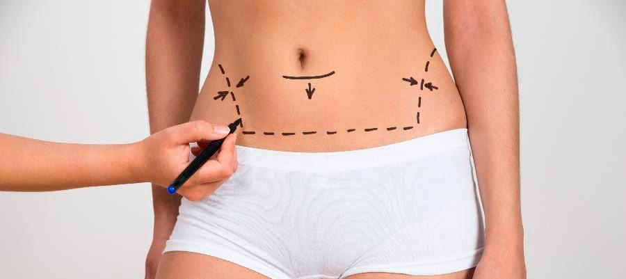 abdominoplastia-barriga-lisinha-1