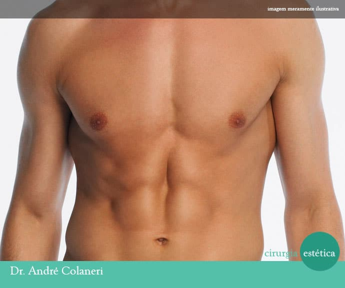 Cirugía plástica masculina