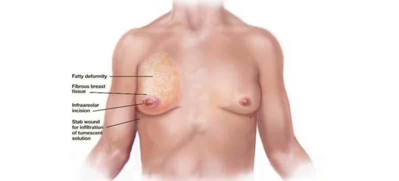 mamoplastia-para-homem