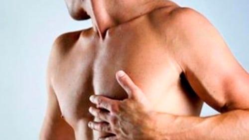 Tudo o que você precisa saber sobre a cirurgia de ginecomastia
