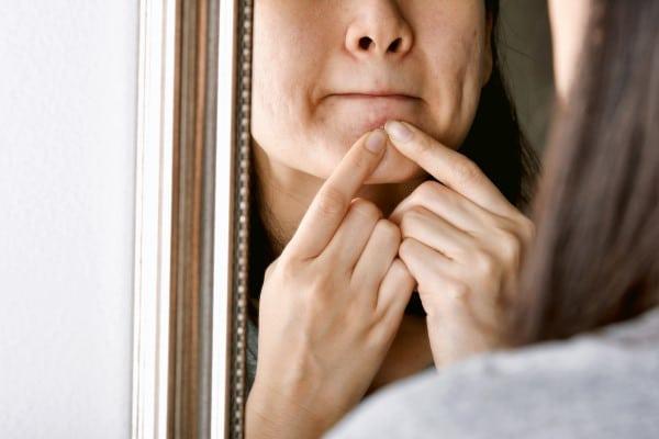 Acne: 5 dicas para evitar